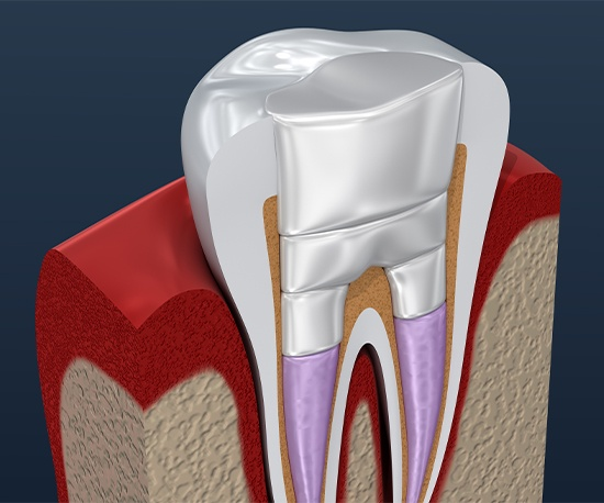 Animation of tooth after root canal