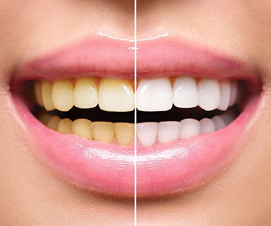 Closeup of smile before and after teeth whitening