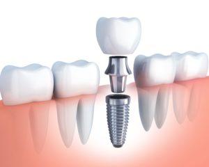 diagram of dental implant in Murphy